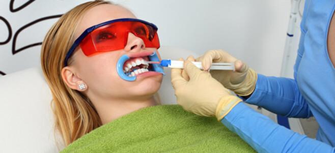 Tẩy trắng răng bằng laser whitening có hại không - 2