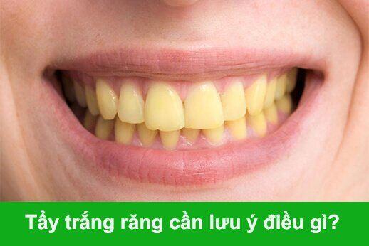 các vấn đề mà bạn chưa biết khi tẩy trắng răng