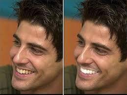 Tẩy trắng răng cho răng trắng sáng