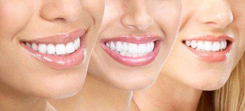 Tẩy trắng răng có an toàn không? 1