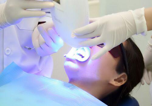 Tẩy trắng răng có an toàn không? 2