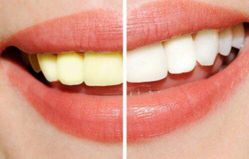 Cách tẩy trắng răng ố vàng nhanh nhất