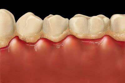 Tẩy trắng răng có làm ê buốt răng không