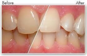 Tẩy trắng răng có nguy hiểm không 1
