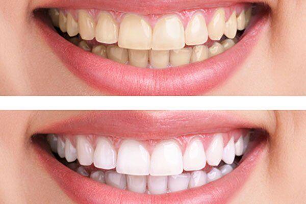 Nên tẩy trắng răng bằng phương pháp nào