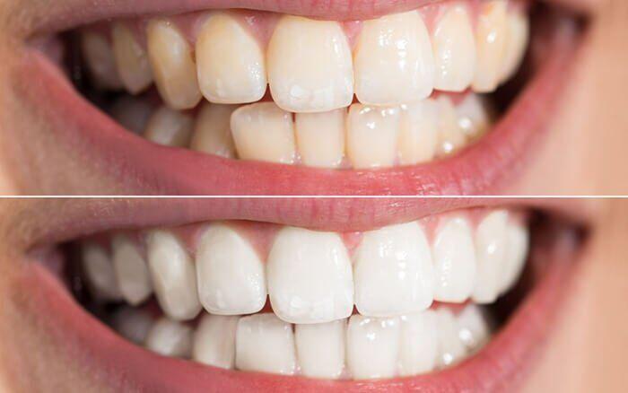 tẩy trắng răng có ê buốt không