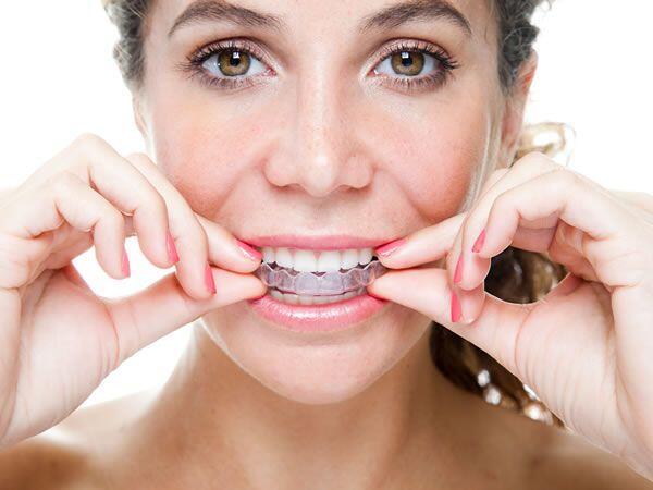 tẩy trắng răng tại nhà