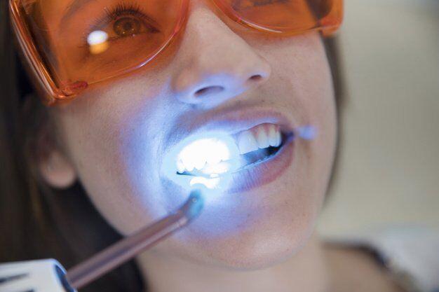 tẩy trắng răng đúng kỹ thuật