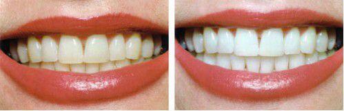 Laser whitening phương pháp tẩy trắng răng siêu hiệu quả