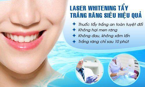 Tẩy trắng răng thế nào để đẹp và an toàn