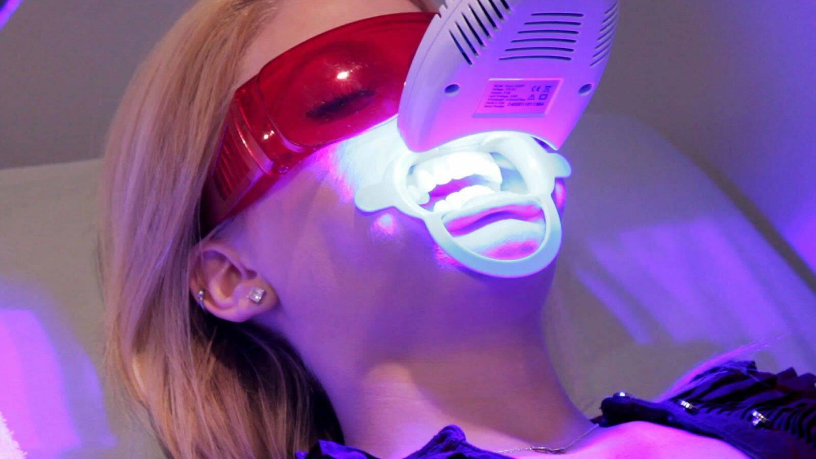 Tẩy trắng răng cho răng sâu có được không - 3