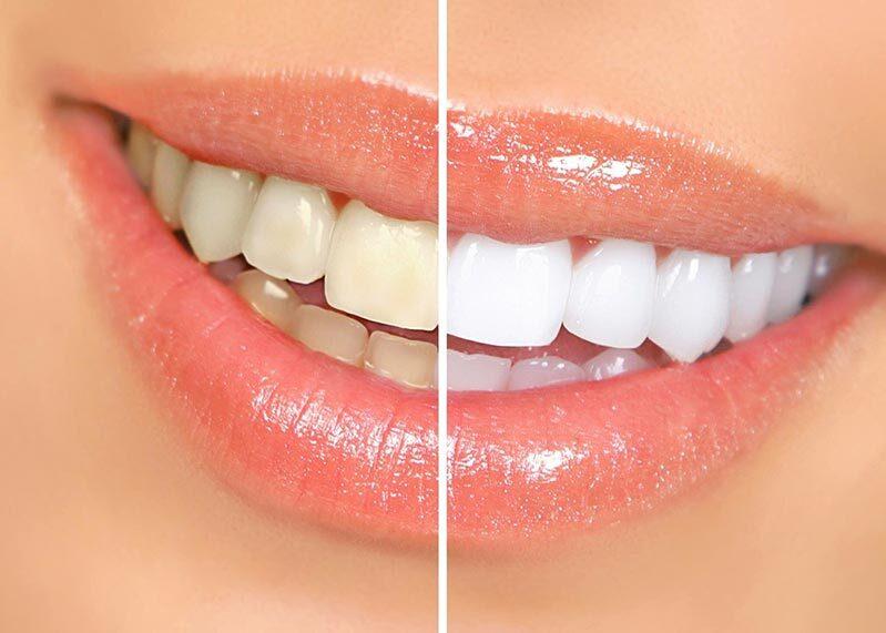 Tẩy trắng răng có nguy hiểm không -3