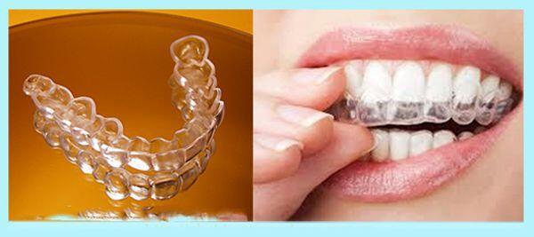 Tẩy trắng răng và những điều cần lưu ý