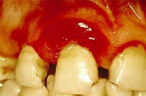 Chân răng bị bong tróc là bệnh gì ?