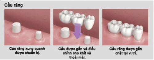 Chân răng còn tốt thì nên phục hình thế nào ?