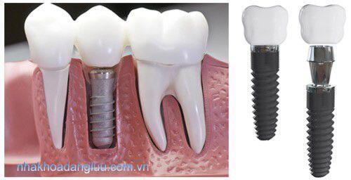 Trồng răng Implant ở đâu tại TPHCM? 1