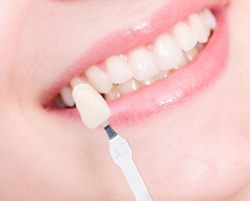 Thời gian bảo hành răng sứ Veneer là bao nhiêu năm?