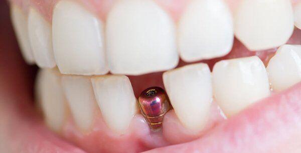 thoi-gian-cay-ghep-implant-trong-bao-lau