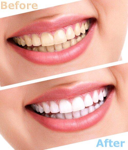 Thông tin hữu ích về tẩy trắng răng tại nhà
