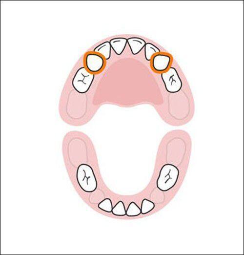 Thứ tự mọc răng sữa của trẻ mẹ cần biết