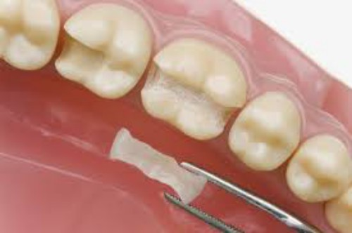 Độ bền sử dụng của miếng trám răng
