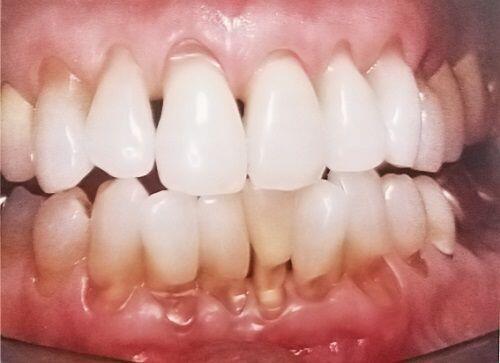 Hậu quả khôn lường từ việc tẩy trắng răng siêu tốc