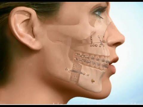 Cách xác định phương pháp điều trị răng hô