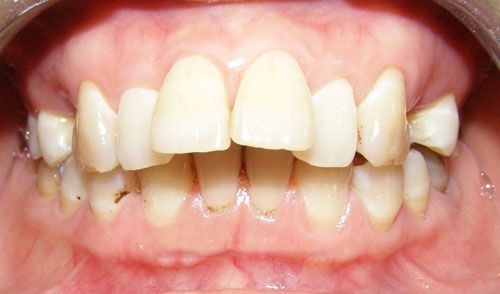 Chữa hô răng triệt để tại nha khoa