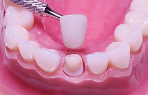 Mài cùi răng áp dụng cho những trường hợp nào ?