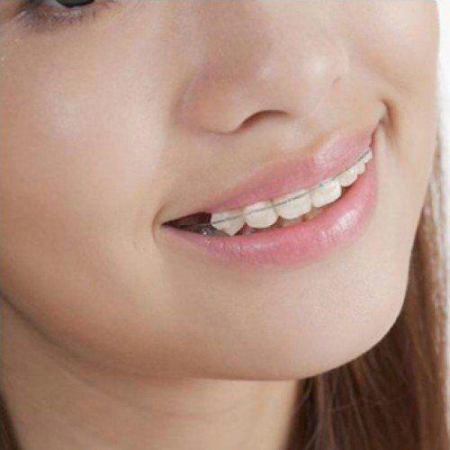 Tổng hợp các nguyên nhân khiến răng bị vẩu