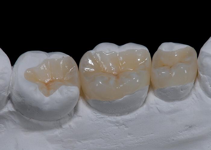 trám răng sứt mẻ