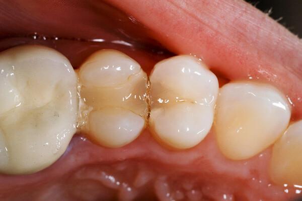 thời gian sử dụng răng trám composite