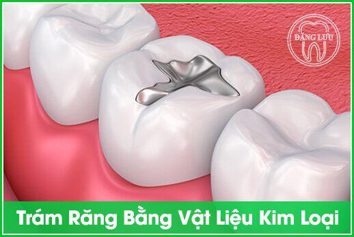 trám răng bằng kim loại