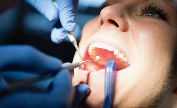 Những nguyên nhân làm hại men răng