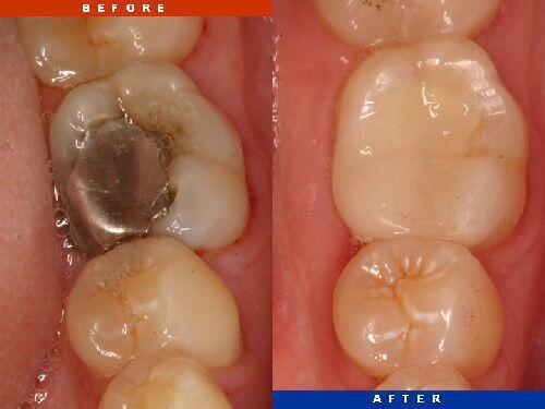 Các vật liệu trám răng bác sĩ khuyên dùng