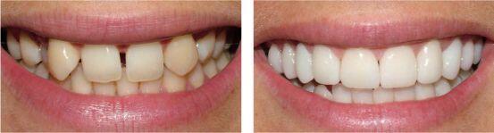 Thời gian sử dụng của răng trám composite