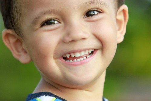 Trám răng thẩm mỹ cho trẻ em