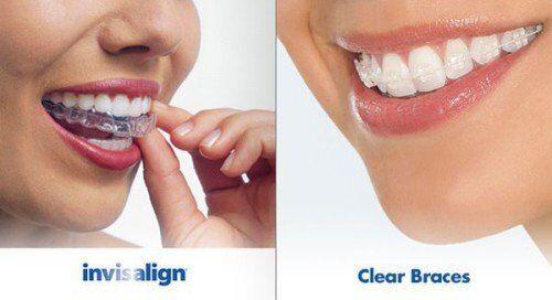 Trào lưu niềng răng thẩm mỹ hiện nay
