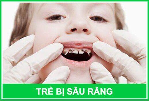 trẻ bị sâu răng có nên trám