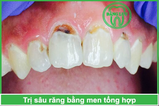 trị sâu răng sớm bằng men răng tổng hợp