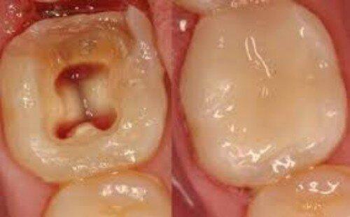 Phát đồ điều trị sâu răng, viêm tủy răng