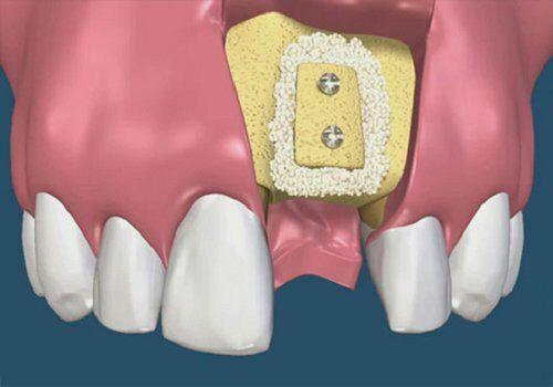 Trồng implant mất bao lâu