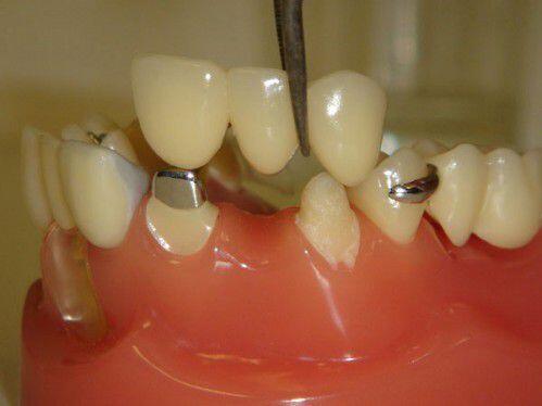 Trồng răng giả có ảnh hưởng gì không ?