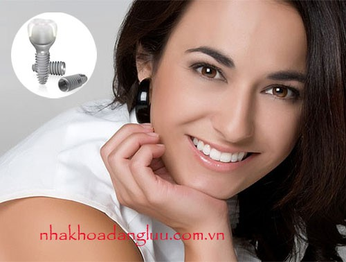 Nên bọc răng sứ hay cấy ghép implant ?