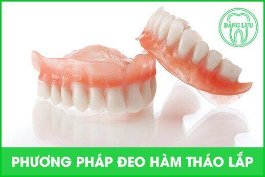 trồng răng giả tháo lắp