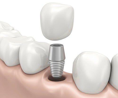 Trồng răng implant bao lâu thì hết sưng ?