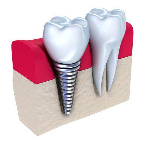 Cắm ghép răng Implant 1