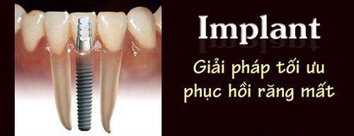 Trồng răng Implant có giá bao nhiêu tiền