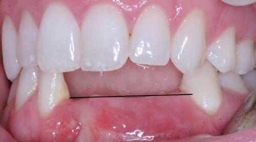 Cấy ghép răng implant như thế nào? 1