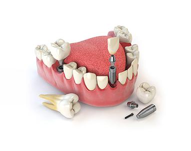 Trồng răng implant ở đâu TP.HCM